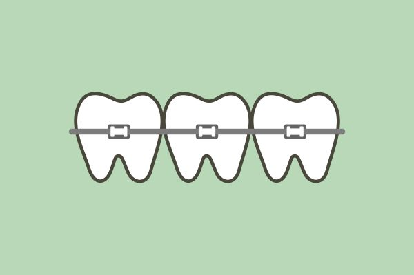 A Comparison Of   Fast Teeth Straightening Options