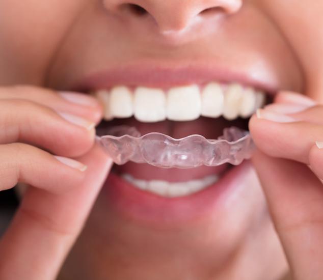 San Leandro Invisalign Orthodontist