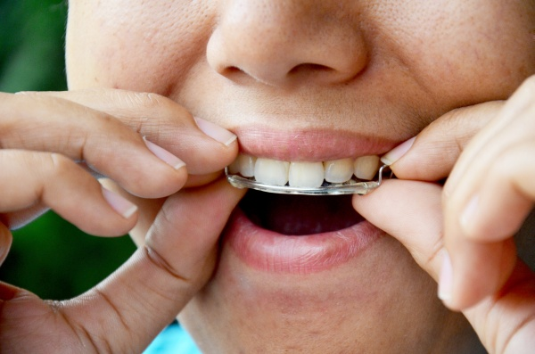 What You Need To Know About Orthodontic Retainers